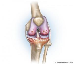 knee-arthritis-preview