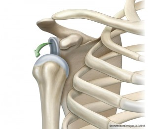 shoulder-bone-dislocation-preview.jpg