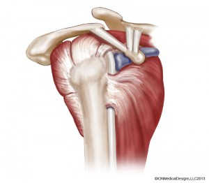 shoulder-lateral-preview